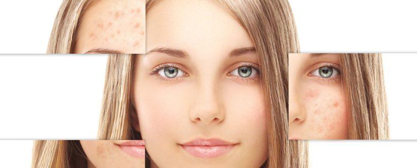 روش های درمان جوش های زیر پوستی